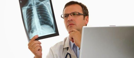 7 Gejala awal kanker paru-paru yang perlu diketahui