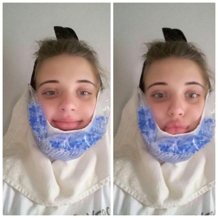I got my wisdom teeth removed  LOL