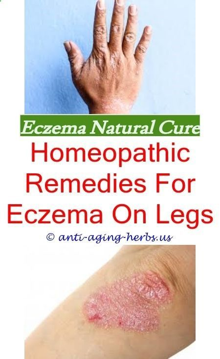 Ayurvedic Treatment For Eczema How To Get Rid Of Eczema On My Hands
