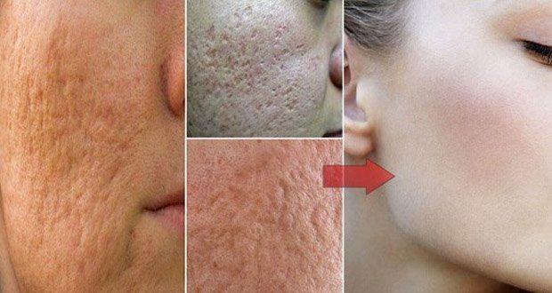 vous-aurez-besoin-dun-seul-ingredient-pour-vous-debarrasser-des-pores-encombres-et-dilates