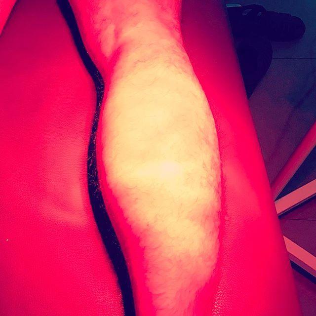 Mala pata la mía! Rotura fibrilar del gemelo justo en semana de  ensayos y exhibición de mi escuela... maldita maceta que me ha caído encima 😰