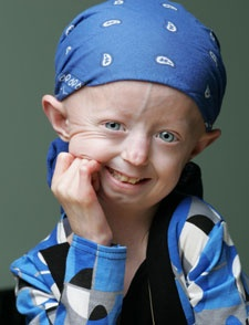Hayley Okines has Progeria but doesn't let it slow her down. I loved her documentary. She is so adorable!