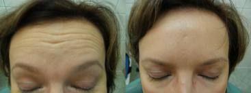 Eliminación de arrugas de la frente.