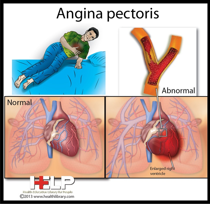 angina pectoris care plan Angina may feel like pressure or squeezing in your chest angina pectoris chest pain coronary artery spasms microvascular angina the location of the nearest hospital that offers 24-hour emergency heart care discuss your emergency plan with your family members.