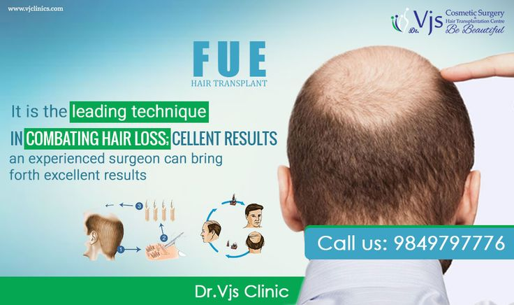 Get the knowledge of FUE hair transplant, FUE is also known as Follicular Unit Extraction which means modern technique to have hair restoration process. This is a best way to get hair transplant by harvesting hairs and place it transplant site from donor site. Get more information at our site. Visit Us.