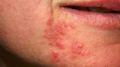 Dermatitis Perioral Dermatitis: Remedy, Causes and Signs