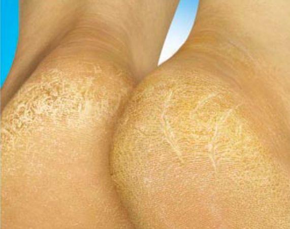 Astuces contre les talons secs et rugueux noté 5 - 2 votes Vos pieds vous font souffrir? Rugosité, callosité et sécheresse? Dites stop! Comment faire? 1. Faites des bains de pieds au vinaigre de cidre: remplissez une bassine d'eau tiédie, veillez à ce que vos pieds soient bien recouverts, ajouter du vinaigre de cidre (environ …