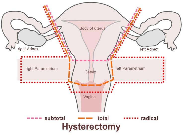 outlet da adidas na laparoscopic hysterectomy