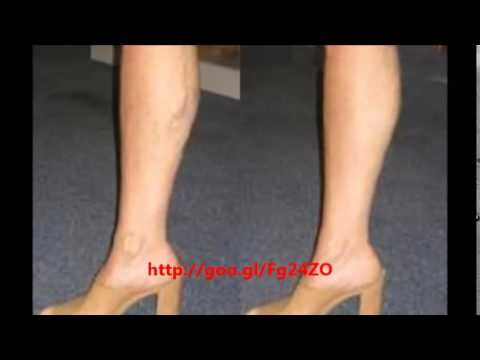 ▶ Varicose Vein Treatment Cost - Varicose Vein Treatment Cost Solutions - YouTube