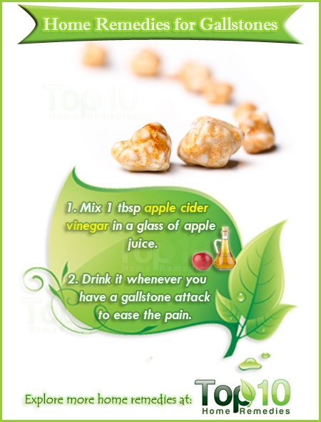 Home Remedies Treating Gallstones Naturally