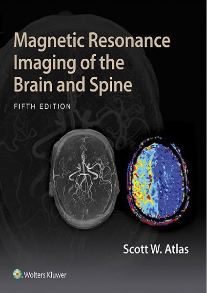 Magnetic Resonance Imaging of the Brain and Spine - 5th edition --- mebooksfree.com