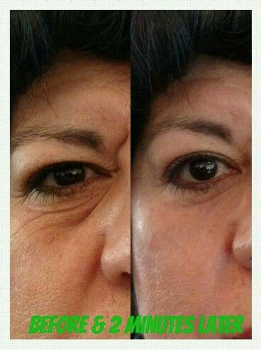 Results in 2 minutes!!! http://youonlybetter.jeunesseglobal.com/products.aspx?p=INSTANTLY_AGELESS