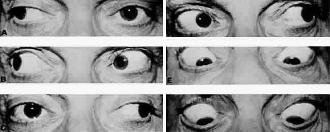Ocular myasthenia with motility pattern mimicking bilateral internuclear ophthalmoplegia. Lag of adducting eye on right (A) and left (C) gaze, relieved with edrophonium (Tensilon) (B and D). Convergence before (E) and after (F) edrophonium administration. Note relief of ptosis (B and D). (Glaser JS: Myasthenic pseudointernuclear ophthalmoplegia. Arch Ophthalmol 75:363, 1966. Copyright © 1966, American Medical Association)