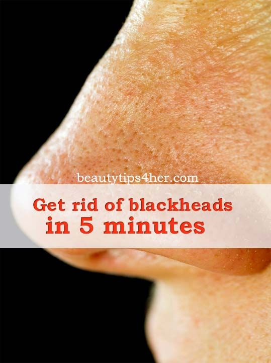 Post from: beautytips4her.com Please LIKE Beauty Tips 4 Her On Facebook so you don't miss a post. Blackheads are gross. Most people get a ...