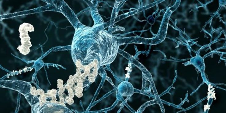 New Alzheimer's treatment fully restores memory function. Australia.  Ultrasonic waves to brain. Human trials to begin 2017.