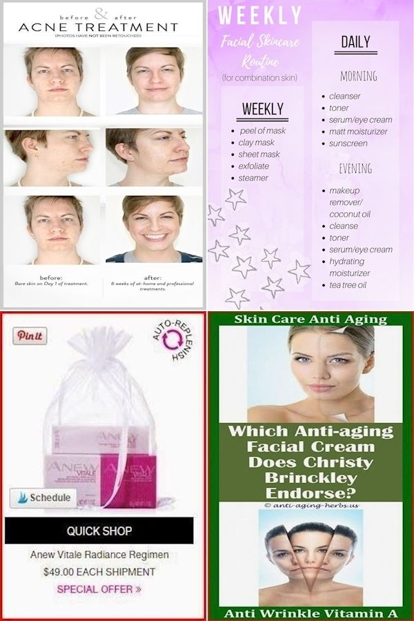 Great Skin Care Products Skincare For 50 Year Old Woman Best Skin Care Products For Mid 20s In 2020 Acne Facial Treatment Skin Care Oil Skin Care