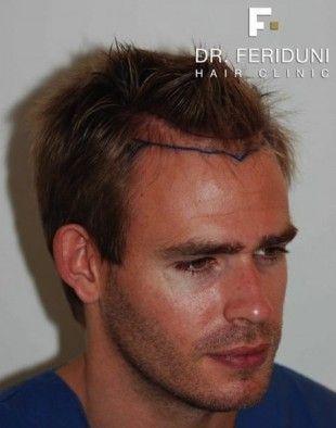 Einige Infos zur Online Beratung bei Hairforlife. Online-Beratungen bei Hairforlife sind kostenlos und unverbindlich. Es können kostenlos Bilder der Haarsituation hochgeladen werden und Hairforlife hilft bei der Frage, ob eine Haartransplantation geeignet ist und welcher seriöse und renommierte Haarchiurg für eine Haartransplantation eventuell in Frage kommt.