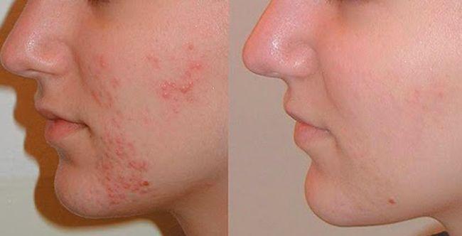 Comment en finir avec les boutons d'acné en 3j : Masque anti-acné naturel