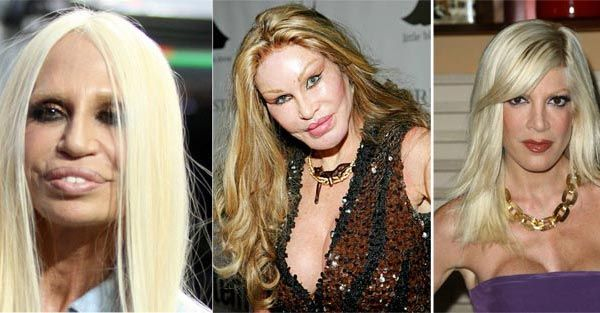 Celebrity Plastic Surgery Gone Wrong Before & After - http://plasticsurgerytalks.com/celebrity-plastic-surgery-gone-wrong/