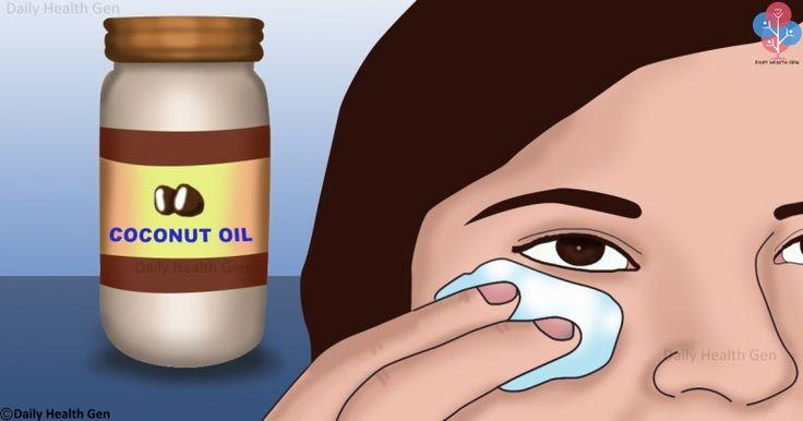Najpopularniejszy olej na świecie nadający się nie tylko do jedzenia to olej kokosowy. Olej kokosowy ma najwięcej właściwości, które sprzyjają urodzie i zdrowiu.   W przeszłości ten rodzaj oleju był uważany za wroga numer 1 dla wszystkich osób ciepiących na choroby serca i nadciśnienie.  Na szc