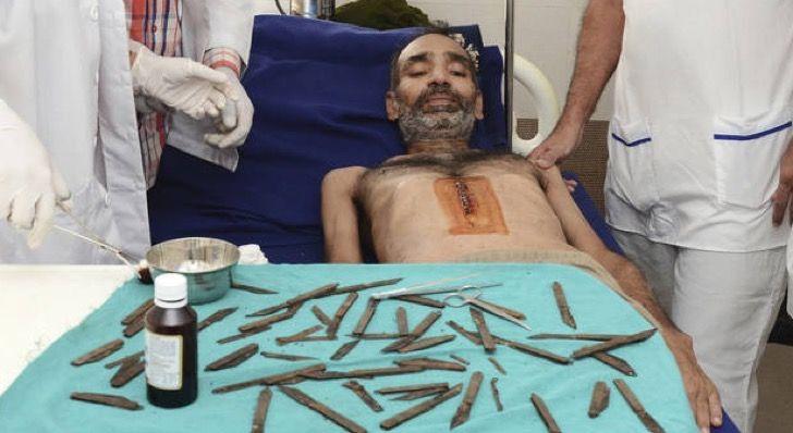 Este hombre indio tuvo que ser operado de urgencia por haberse tragado 40 cuchillos