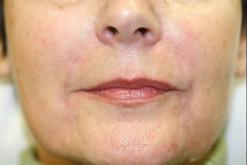 Dermal fillers are useful to cosmetically enhance areas that may lack volume or definition