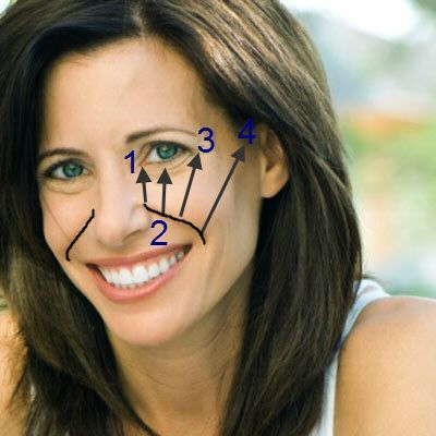how to get rid of droopy eyelids without surgery