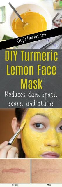TURMERIC LEMON FACE MASK FOR DARK SPOTS, SCARS, AND STAINS
