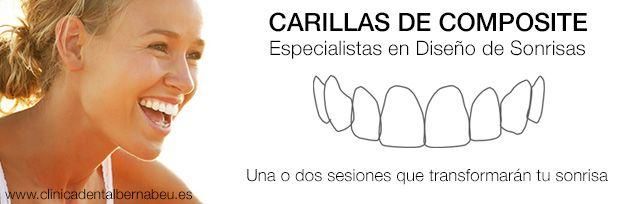 Carillas dentales composite