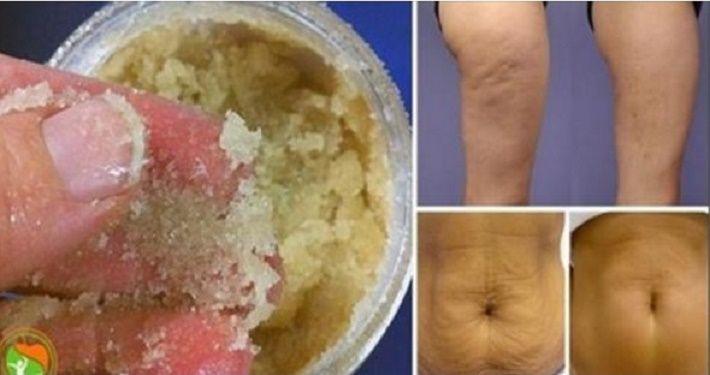Este tratamento vai fazer maravilhas em sua pele!Por que dizemos isso com tanta…