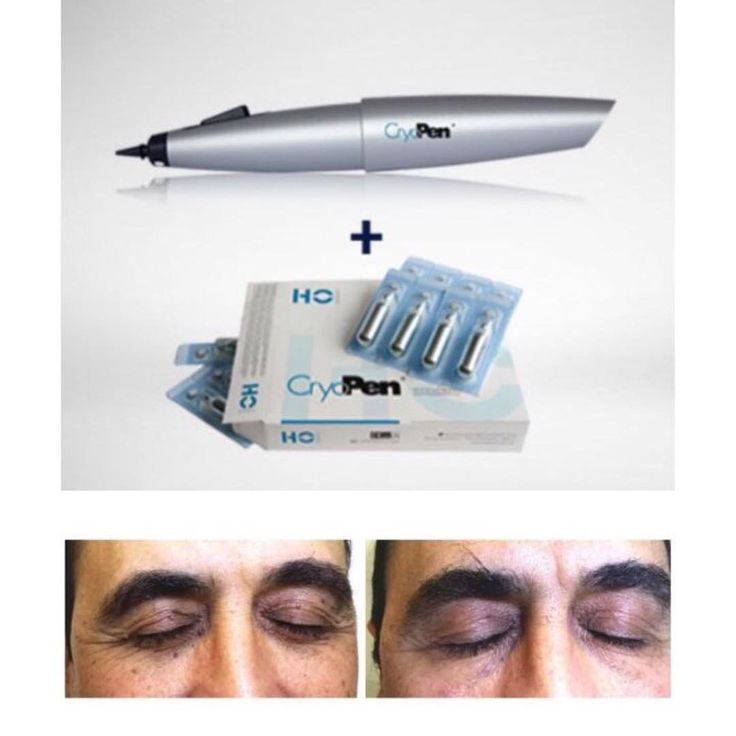 Cryotherapy is recognized as the benchmark in dermatology practice worldwide.The Innovative Cryopen allows to work with millimeter precision.Perfect for Removing Benign Skin Lesions quickly and effectively with no more collateral damage of healthy tissue.Call Now for demo 04-3542905 #spectronix #spectronixgroup #spectronixdubai #askspectronix #demo #skin #skincare #cryopen #cryotherapy #cryo #doctor #gp #aesthetic #pediatrician #gynecologist #dermatology #podiatry #veterinarian #urology…