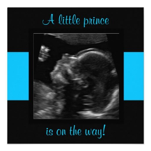 20 best Ultrasound Baby Shower Invitations images on Pinterest