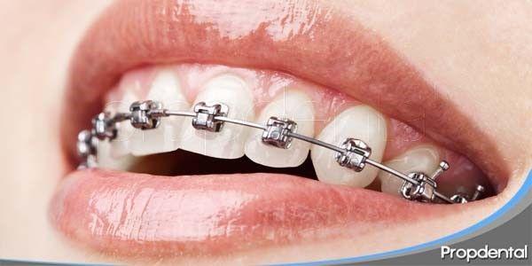 Todos debemos cuidarnos nuestros dientes desde el primer momento que podemos cepillarlos diariamente, sin embargo hay peligro que no conocemos