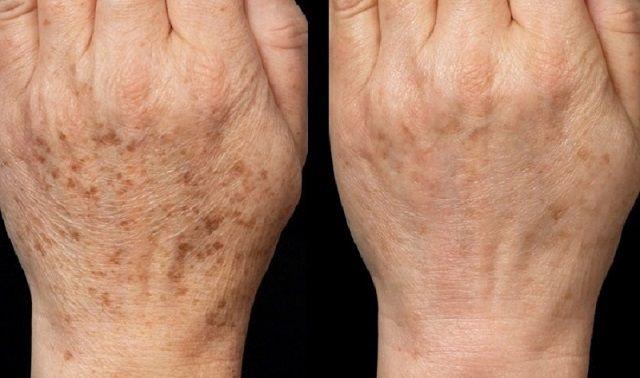 Korpa ellen rozmaring ,Hajpakolások hajhullásra,Gyógynövények hajproblémákra ,Arcfiatalító masszázs ,Orvosi füstike- hajra és ekcémára ,Házipatika : a köröm elszíneződésének kezelése ,Körömfehérítés ,Otthoni gyógymód a striák eltávolítására,Ráncok ellen : otthoni természetes anyagokkal,Bőrápolás (időskori elváltozásokra), - pacsakute Blogja - Betegségekről,Ajándék tippek ,Állatvilág,Angyalok ,Bőr,haj,köröm,Bölcs gondolatok,Cicmojgónak,Csili-vili-hullámzó…