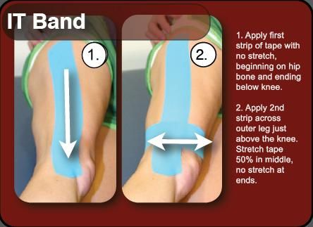 kinesiotape for IT band