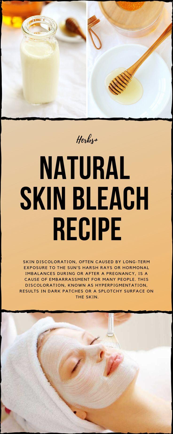 Natural Skin Bleach Recipe | Skin discoloration, Skin ...