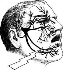 Nerve pathways. Neuropathy.Trigeminal neuropathy explains it!!
