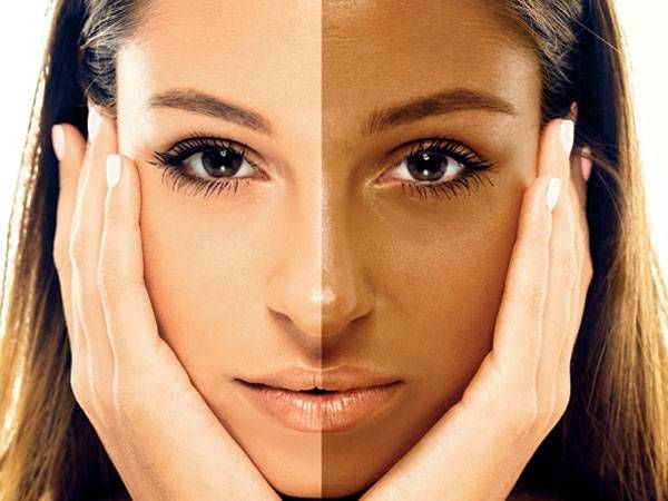 Worried about Tanned Skin? Here are the cause of skin tanning and effective home remedies for tan removal. Learn how to get rid of sun tan.