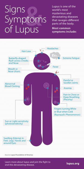 Signs symptoms of #Lupus