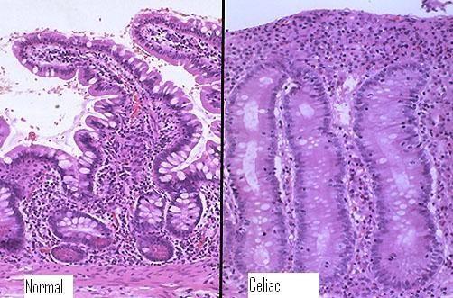 celiac testing