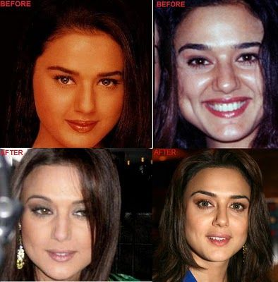 Preity Zinta Bollywood Celebrities Plastic Surgery and Botox ~ Bollywood Trends-The Best Bollywood Site