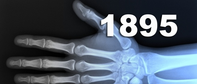 Ontdekking van de röntgenstraling - Vandaag in 1895  Vandaag in 1895 ontdekte Wilhelm Röntgen de röntgenstraling. Deze straling is uiterst geschikt om foto's te maken van bijvoorbeeld beenbreuken