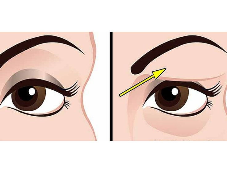 How To Treat Droopy Eyes Naturally and Effectively