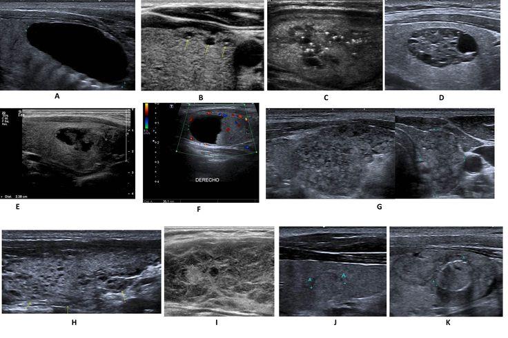 SERAM 2014 / S-1170 / Utilidad del sistema de clasificación TI-RADS en el manejo del nódulo tiroideo. - EPOS™