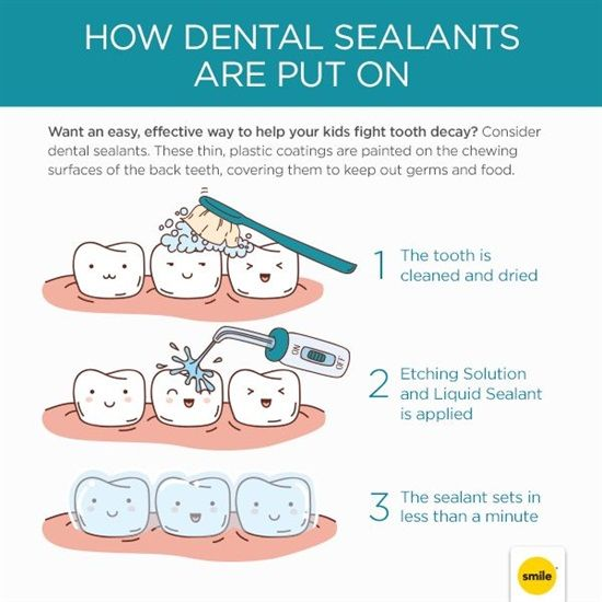 Best images about pediatric dentistry on pinterest