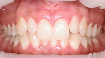 """Лечение и удаление зубов. Примеры работ специалистов стоматологической клиники Ортодонт. """"В процессе № 1"""""""