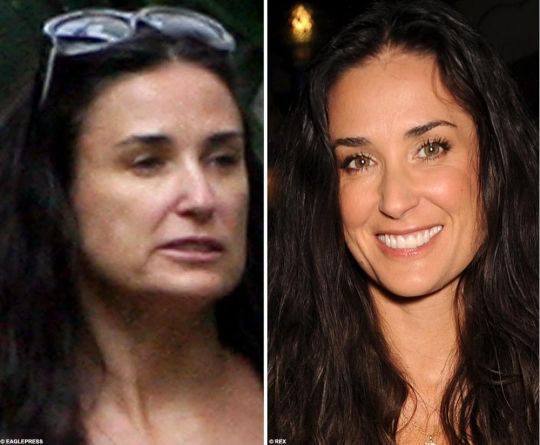 jennifer aniston before and after nose job | Demi Moore Nose Job Before And After