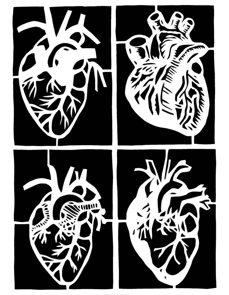 "Original Paper Cutting - FOUR ANATOMICAL HEARTS - 8 x 10"" - Medical Illustration"