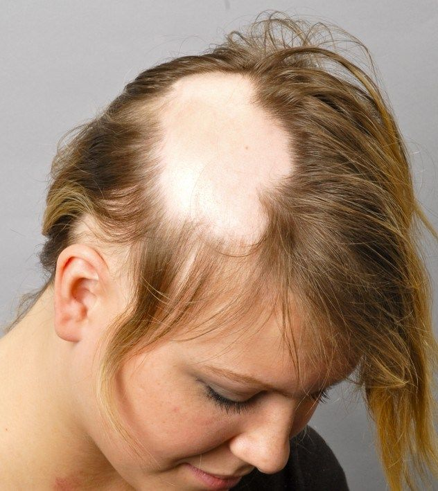 Alopecia areata, This is an autoimmune disease where the immune system mistakenly attacks hair follicles on the head, resulting in patchy hair loss.