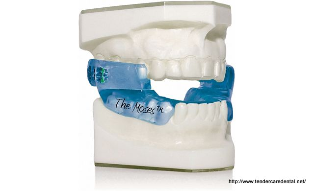 Obstructive Sleep Apnea Appliance used to treat mild sleep apnea.